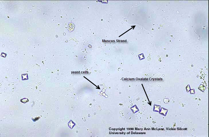 http://www.medical-labs.net/example-of-microscopic-urine-sediment-exam-results-794/