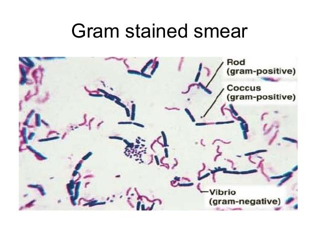 http://image.slidesharecdn.com/macroscopicandmicroscopicexaminationinbacteriology-141102063159-conversion-gate02/95/macroscopic-and-microscopic-examination-in-bacteriology-22-638jpg?cb=1414910001
