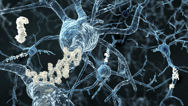 http://www.cbsnews.com/news/brain-plaque-buildup-tied-to-alzheimers-found-in-young-adults/