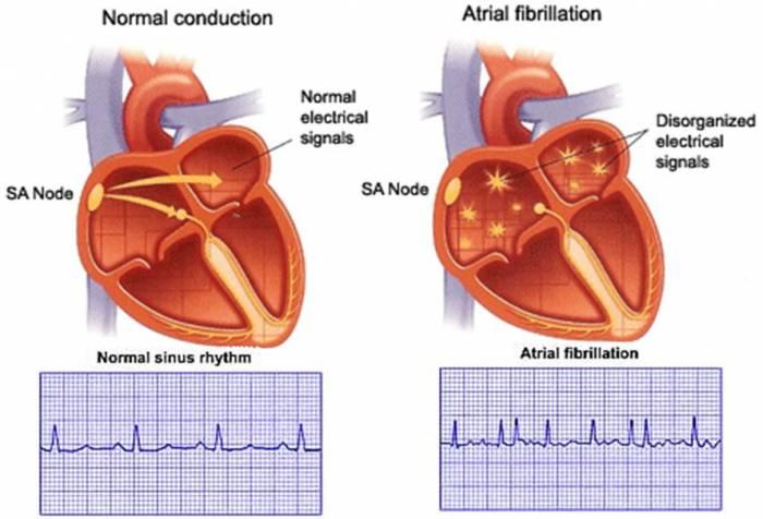 http://qsota.com/the-cardiac-arrhythmias/