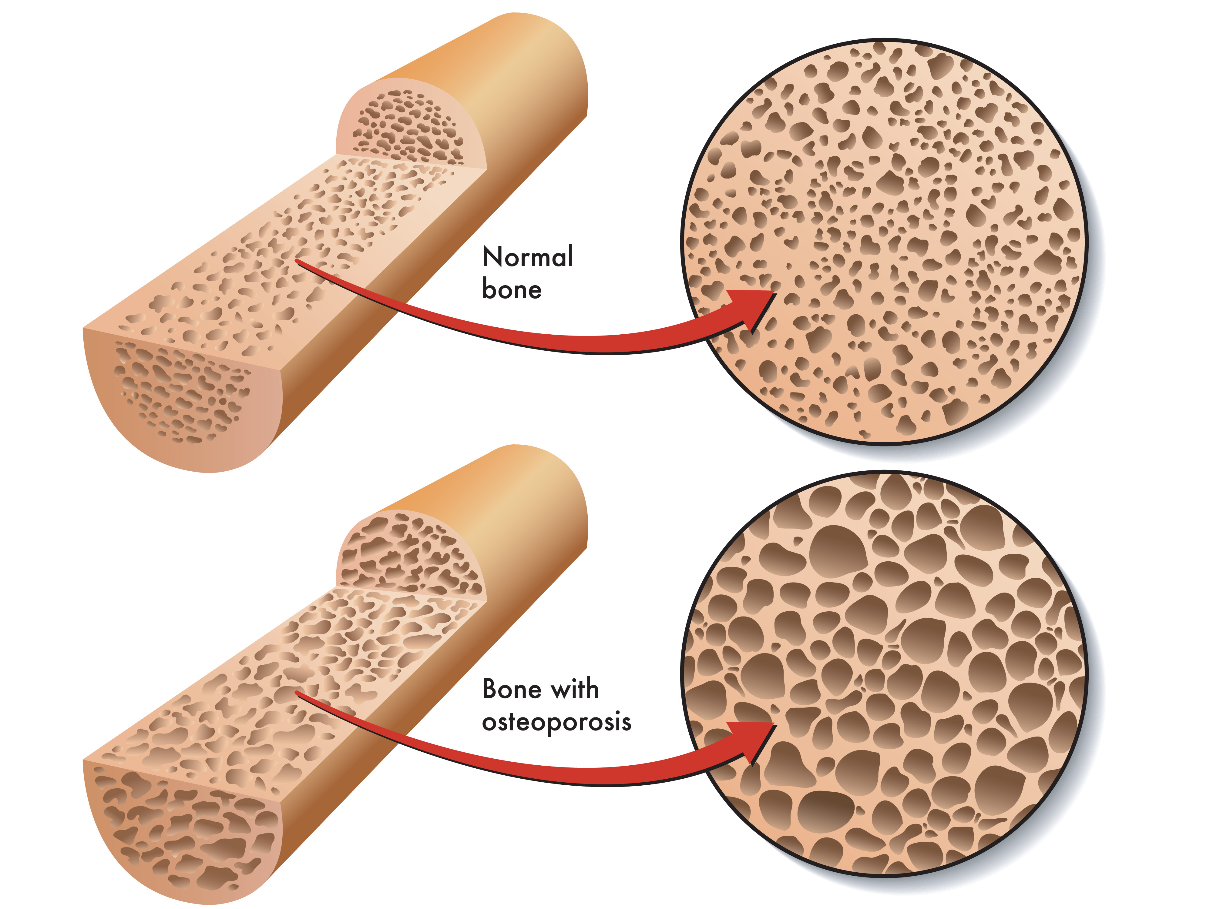 http://www.painmanagementworks.com/may-is-osteoporosis-awareness-month/